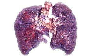 Кандидоз легких: причины, симптомы и лечение