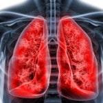 Легочное кровотечение и кровохарканье — причины, симптомы