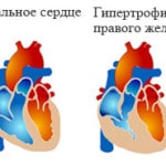 Легочное сердце — что это такое, симптомы, классификация