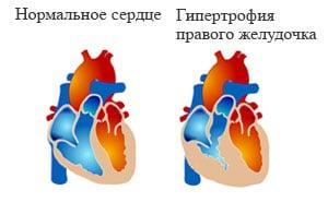 Легочное сердце – что это такое? Симптомы, классификация