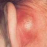 Мастоидит — что это такое, симптомы, лечение мастоидита
