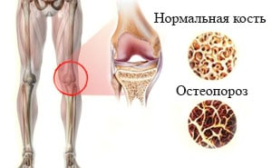 Остеопороз: что это такое, симптомы и лечение