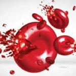 Пароксизмальная ночная гемоглобинурия — симптомы, причины, лечение