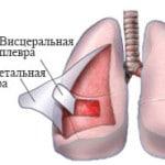Плеврит легких — что это такое, как лечить