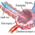 Пневмосклероз легких — что это такое и как лечить