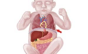 Пороки развития легких у детей