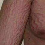 Синдром Иценко-Кушинга — что это такое, фото, симптомы