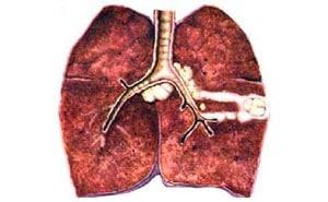 Туберкулезный бронхоаденит: симптомы, лечение, диагностика