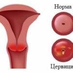 Что такое цервицит шейки матки — симптомы, лечение