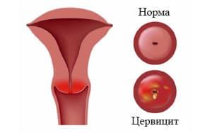 Что такое цервицит шейки матки: симптомы, лечение