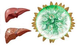 Что такое гепатит С: чем он опасен и как его лечить