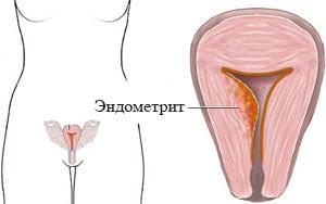 Эндометрит: что это такое, симптомы и лечение