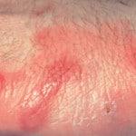 Эризипелоид — что это такое, симптомы, лечение