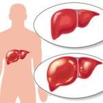 Гепатит А — что это такое и как передается, симптомы, лечение