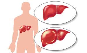 Гепатит А: что это такое и как передается, симптомы, лечение