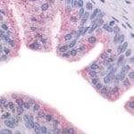 Гепатит Е — что это такое и как передается