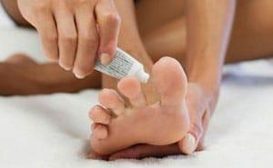 Грибок ногтей на ногах: чем лечить в домашних условиях