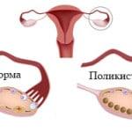 Поликистоз яичников — что это такое, симптомы и лечение