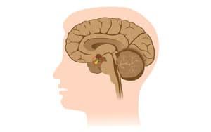 Синдром Шихана: что это такое, симптомы, лечение