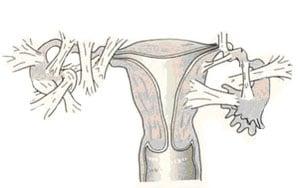 Спаечная болезнь органов малого таза: симптомы, лечение